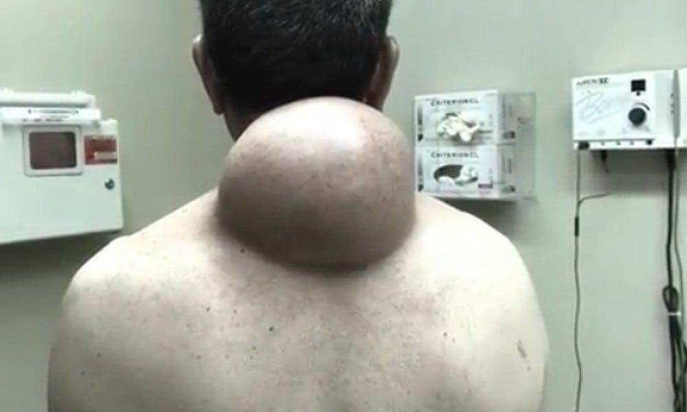 Eiter aus dem penis