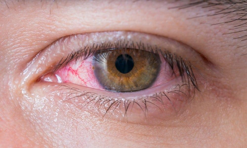 LifeTeenager hat Schmerzen im Auge – dann finden Ärzte DAS