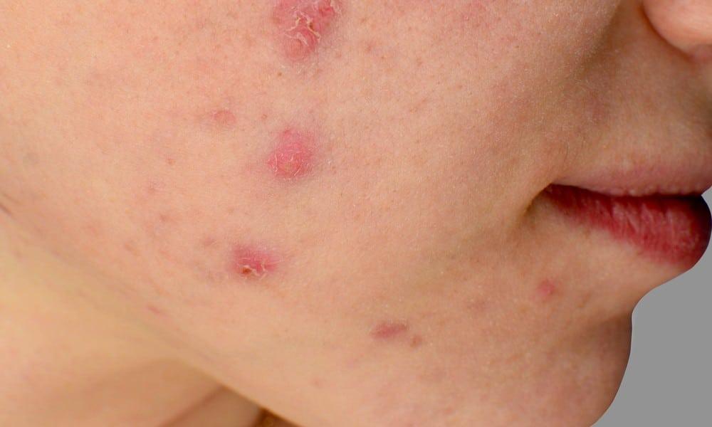 Du hast Akne? Diese 5 Fehler führen zu Pickel im Gesicht
