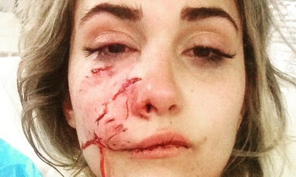 Gesicht entstellt: Model (23) wird von Kampfhund zerfleischt