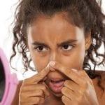 Darum solltest du einen Pickel auf der Nase NIE ausdrücken