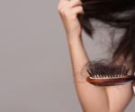 Haarausfall: Das sind die 7 häufigsten Ursachen