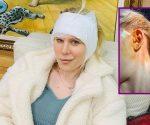 So lief die Beauty-OP: Arielle Rippegather hat sich die Ohren anlegen lassen!